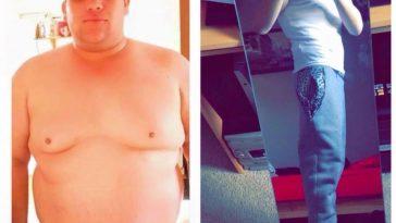 Loïc avant et après son opération